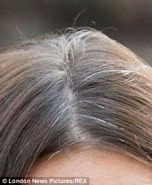 The Duchess of Cambridge battles with grey hair, as these pictures reveal. Genetic factors appear to be important in determining when we turn grey, rather than lifestyle, says Professor Sinclair